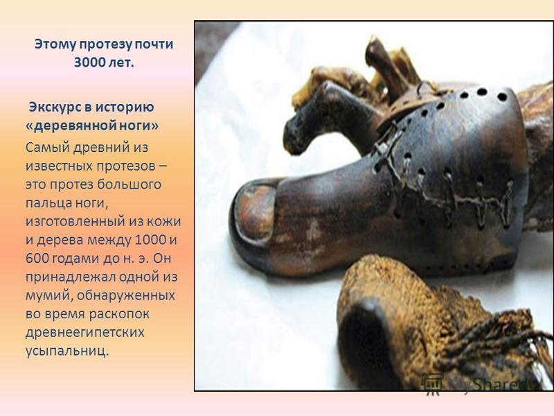 Этому протезу почти 3000 лет. Экскурс в историю «деревянной ноги» Самый древний из известных протезов – это протез большого пальца ноги, изготовленный из кожи и дерева между 1000 и 600 годами до н. э. Он принадлежал одной из мумий, обнаруженных во вр