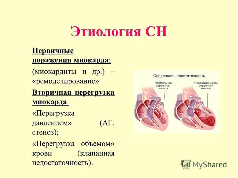 Этиология CН Первичные поражения миокарда: (миокардиты и др.) – «моделирование» Вторичная перегрузка миокарда: «Перегрузка давлением» (АГ, стеноз); «Перегрузка объемом» крови (клапанная недостаточность).