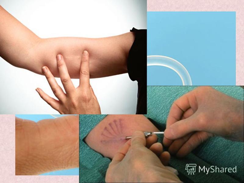 С использованием эстрогенов КОКи Влагалищное кольцо Гормональный пластырь Без использования эстрогенов Мини-пили Подкожные имплантаты