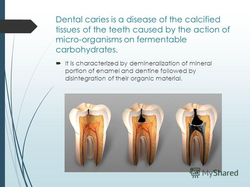 Dental caries is a disease of the calcified tissues of the teeth caused by the action of micro-organisms on fermentable carbohydrates. It is characterized by demineralization of mineral portion of enamel and dentine followed by disintegration of thei