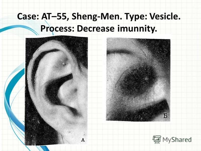 Case: AT–55, Sheng-Men. Type: Vesicle. Process: Decrease imunnity.