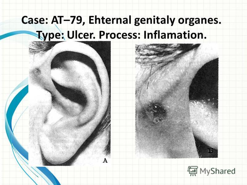 Case: AT–79, Ehternal genitaly organes. Type: Ulcer. Process: Inflamation.