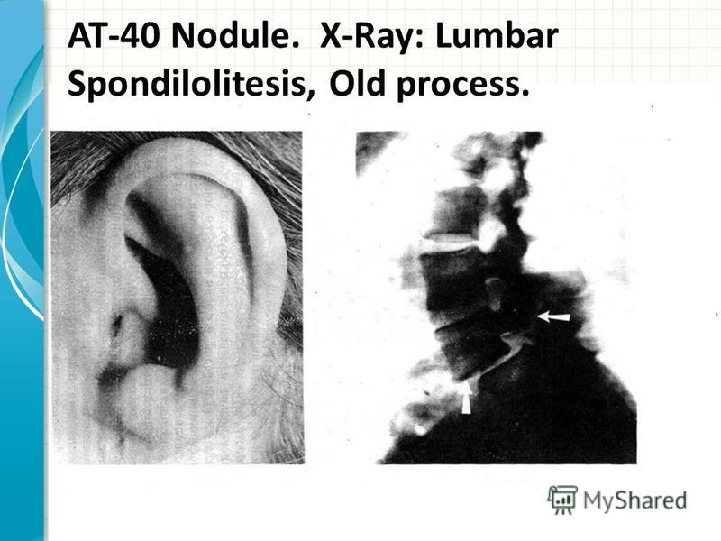 AT-40 Nodule. X-Ray: Lumbar Spondilolitesis, Old process.
