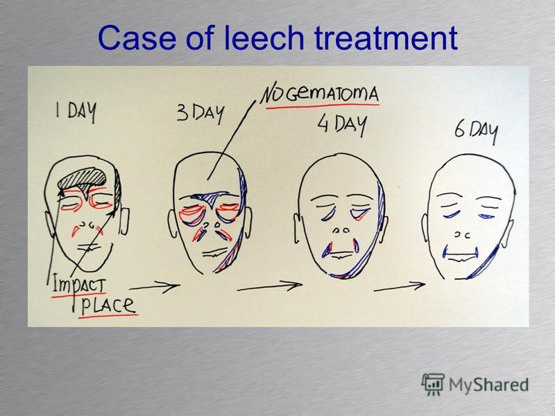 Case of leech treatment