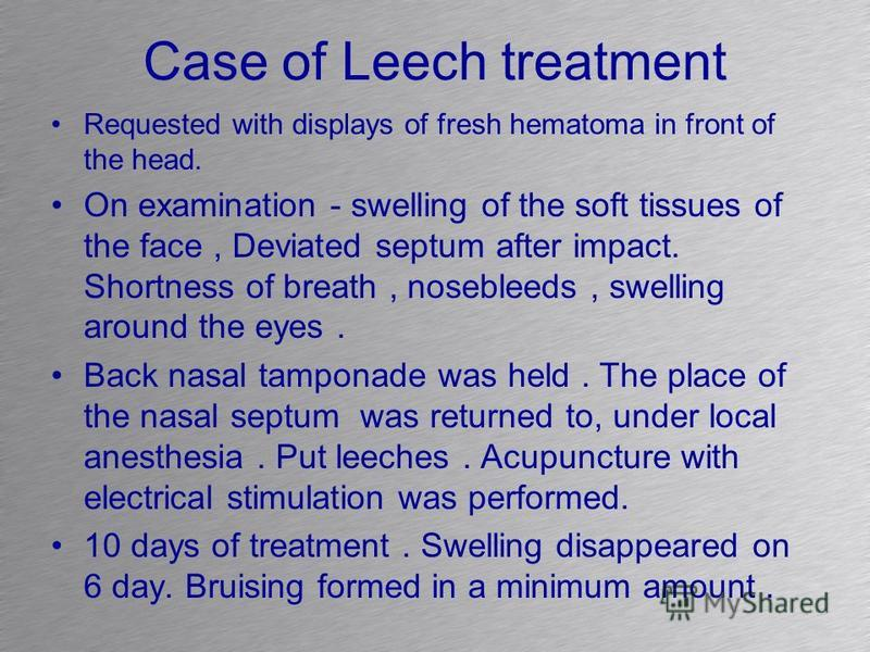 Case of Leech treatment Requested with displays of fresh hematoma in front of the head. On examination - swelling of the soft tissues of the face, Deviated septum after impact. Shortness of breath, nosebleeds, swelling around the eyes. Back nasal tam