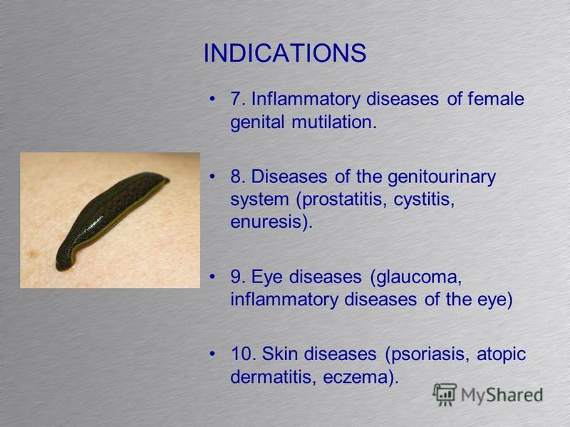 INDICATIONS 7. Inflammatory diseases of female genital mutilation. 8. Diseases of the genitourinary system (prostatitis, cystitis, enuresis). 9. Eye diseases (glaucoma, inflammatory diseases of the eye) 10. Skin diseases (psoriasis, atopic dermatitis
