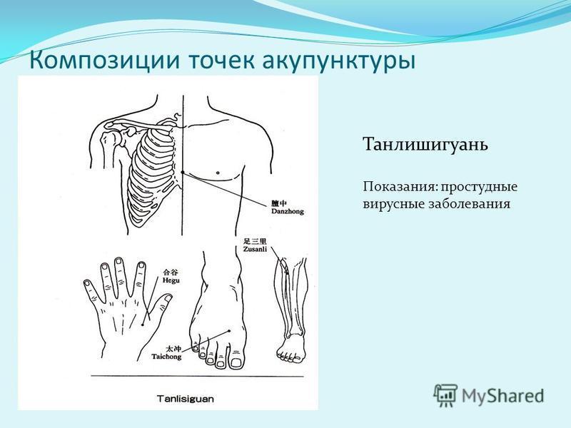 Композиции точек акупунктуры Танлишигуань Показания: простудные вирусные заболевания