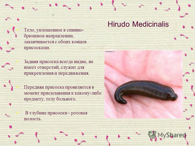 Hirudo Medicinalis Тело, уплощенное в спинно- брюшном направлении, заканчивается с обоих концов присосками. Задняя присоска всегда видна, не имеет отверстий, служит для прикрепления и передвижения. Передняя присоска проявляется в момент присасывания
