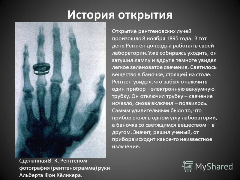 История открытия Сделанная В. К. Рентгеном фотография (рентгенограмма) руки Альберта Фон Кёликера. Открытие рентгеновских лучей произошло 8 ноября 1895 года. В тот день Рентген допоздна работал в своей лаборатории. Уже собираясь уходить, он затушил л