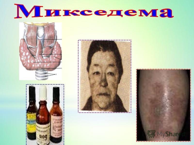 Қалқанша безден бөлінетін гормондар жетіспесе, адам микседема (грекше «myxa» - шырыш және «oidema» - ісіну) ауруына шалдығады. Аурудың белгілері: 1) ағзада зат алмасу 30-40%-ға дейін бәсеңдейді, әсіресе нәруыз алмасуы бұзылады; 2) терінің астына су ж