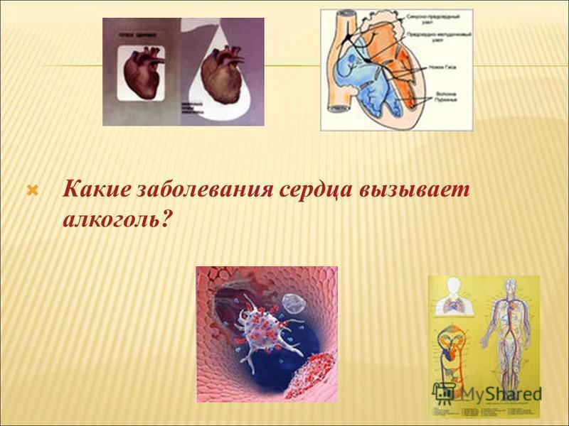 Какие заболевания сердца вызывает алкоголь?
