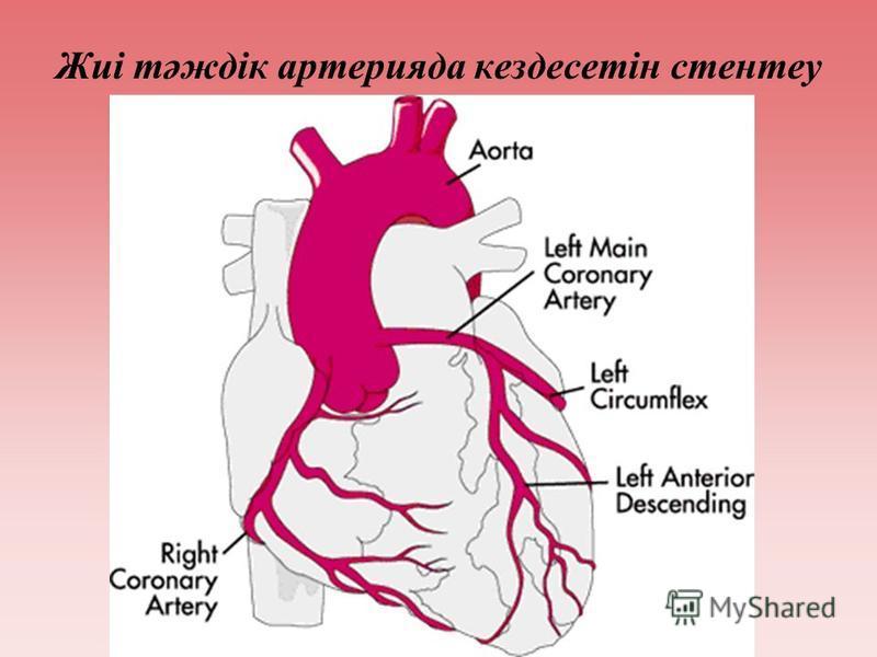 Жиі тәждік артерияда кездесетін стентеу