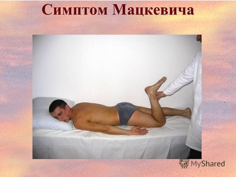 Симптом Мацкевича