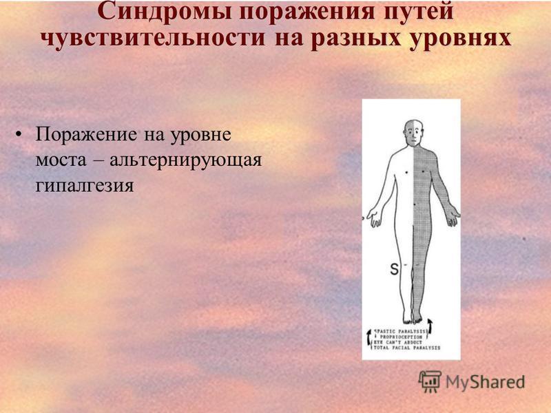 Синдромы поражения путей чувствительности на разных уровнях Поражение на уровне моста – альтернирующая гипалгезия