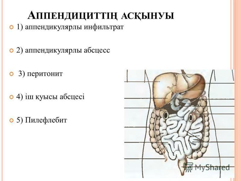 Этиологиясы мен патогенезі: Рефлекторлы (appendix-тің жүйкетамыр-реттеу аппаратының қызметінің дисфункиясы) Гематогенді жолмен аппендициттің тромбозы Лимфогенді Иммунологиялық Алиментарлы Паразитарлы Баугиноспазм Бөгде заттар (түйме, тас, шемішке...)