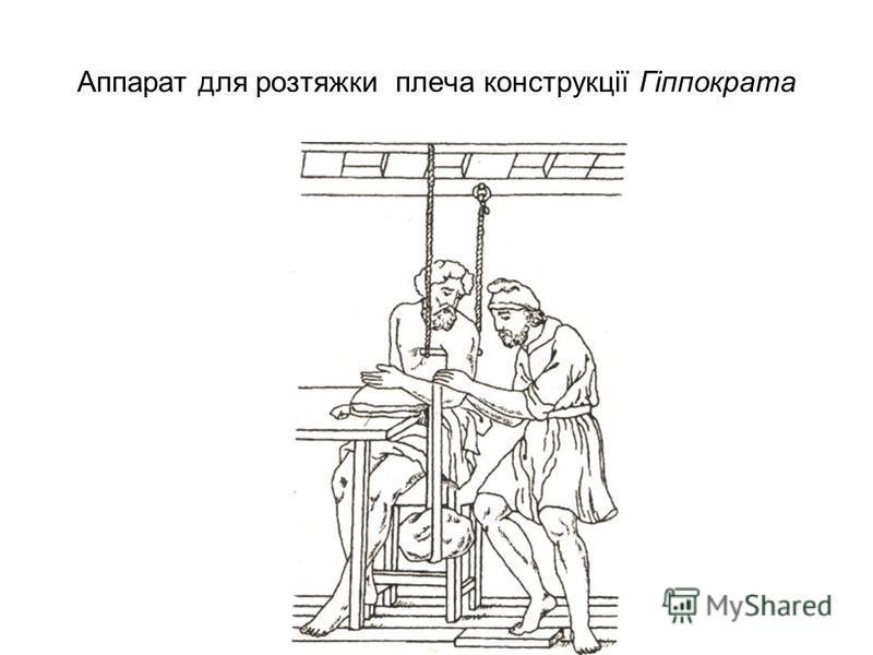 Аппарат для розтяжки плеча конструкції Гіппократа