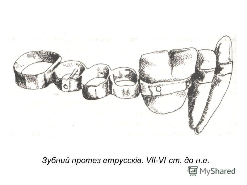 Зубний протез етруссків. VII-VI ст. до н.е.