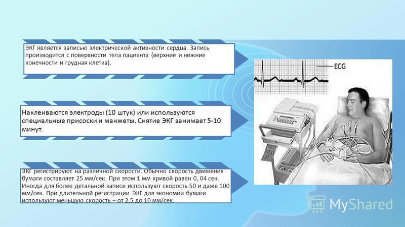 ЭКГ является записью электрической активности сердца. Запись производится с поверхности тела пациента (верхние и нижние конечности и грудная клетка). Наклеиваются электроды (10 штук) или используются специальные присоски и манжеты. Снятие ЭКГ занимае