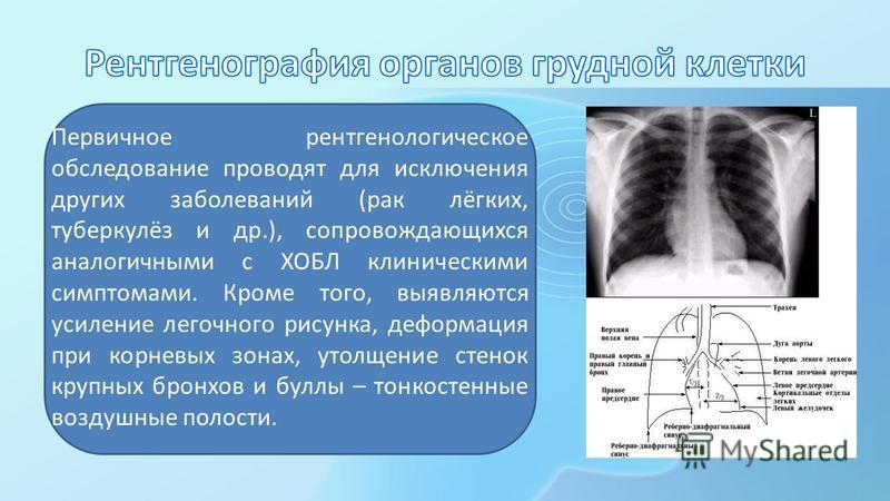 Первичное рентгенологическое обследование проводят для исключения других заболеваний (рак лёгких, туберкулёз и др.), сопровождающихся аналогичными с ХОБЛ клиническими симптомами. Кроме того, выявляются усиление легочного рисунка, деформация при корне