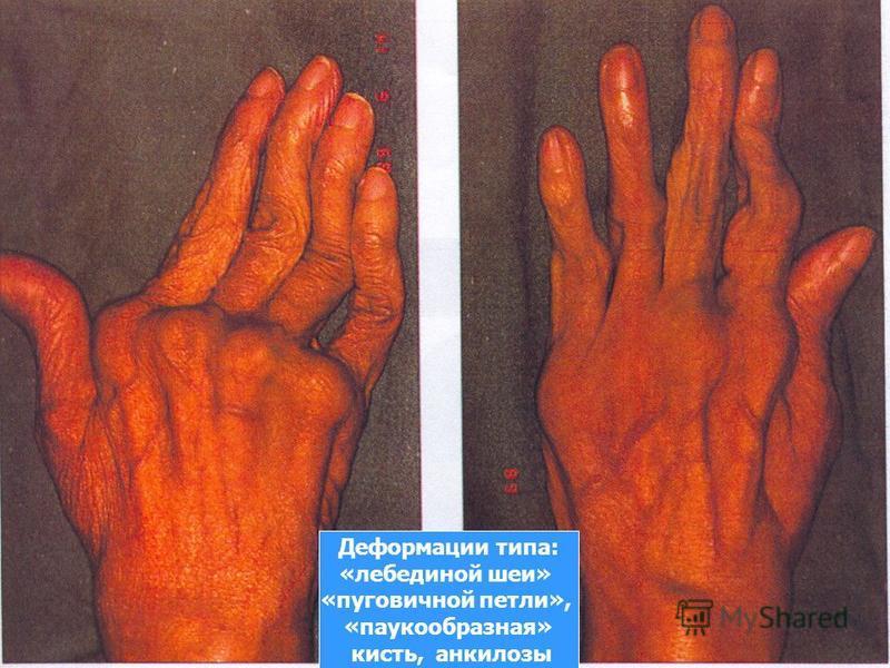 Деформации типа: «лебединой шеи» «пуговичной петли», «паукообразная» кисть, анкилозы