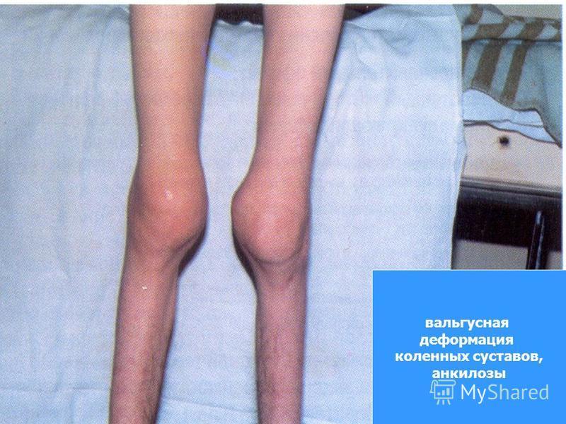вальгусная деформация коленных суставов, анкилозы