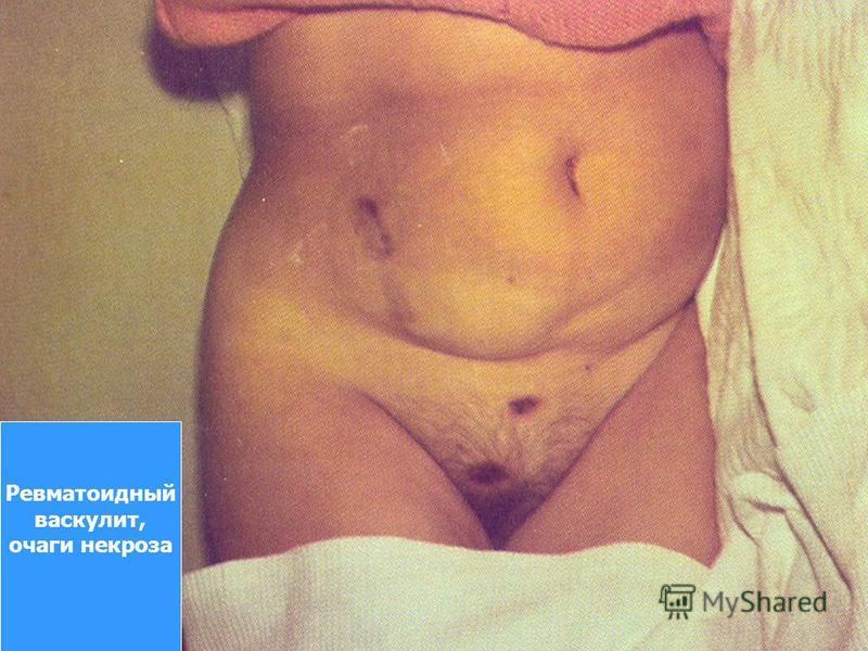 Ревматоидный васкулит, очаги некроза