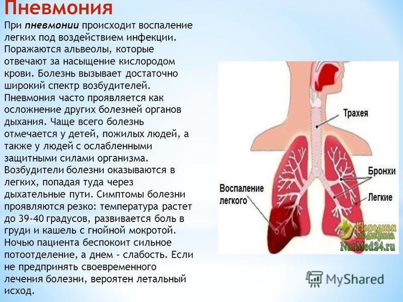 Пневмония При пневмонии происходит воспаление легких под воздействием инфекции. Поражаются альвеолы, которые отвечают за насыщение кислородом крови. Болезнь вызывает достаточно широкий спектр возбудителей. Пневмония часто проявляется как осложнение д