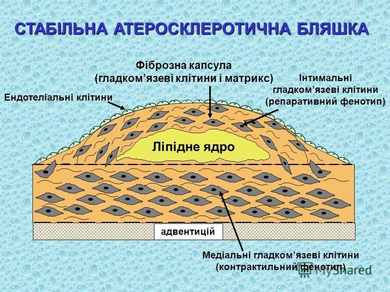 СТАБІЛЬНА АТЕРОСКЛЕРОТИЧНА БЛЯШКА Фіброзна капсула (гладкомязеві клітини і матрикс) Ендотеліальні клітини Інтимальні гладкомязеві клітини (репаративний фенотип) Медіальні гладкомязеві клітини (контрактильний фенотип)