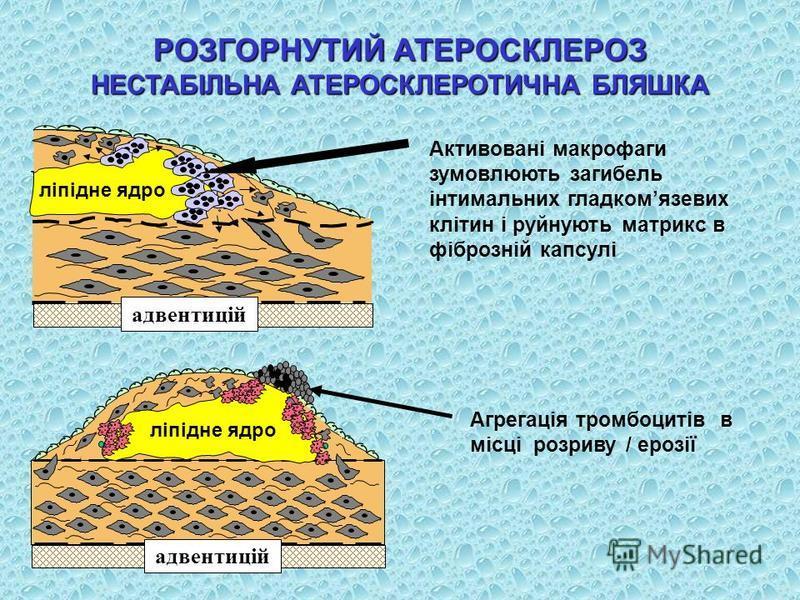 Активовані макрофаги зумовлюють загибель інтимальних гладкомязевих клітин і руйнують матрикс в фіброзній капсулі РОЗГОРНУТИЙ АТЕРОСКЛЕРОЗ НЕСТАБІЛЬНА АТЕРОСКЛЕРОТИЧНА БЛЯШКА Агрегація тромбоцитів в місці розриву / ерозії адвентицій lipid core ліпідне