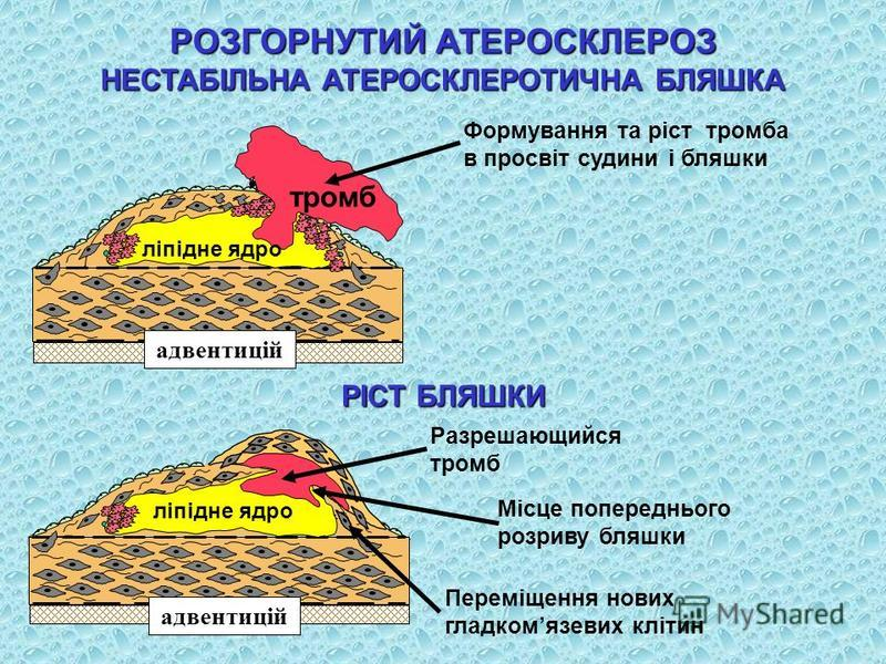 Формування та ріст тромба в просвіт судини і бляшки РІСТ БЛЯШКИ Місце попереднього розриву бляшки Разрешающийся тромб Переміщення нових гладкомязевих клітин РОЗГОРНУТИЙ АТЕРОСКЛЕРОЗ НЕСТАБІЛЬНА АТЕРОСКЛЕРОТИЧНА БЛЯШКА