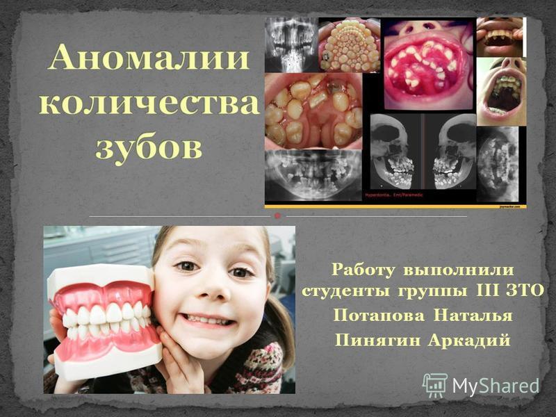 Работу выполнили студенты группы III ЗТО Потапова Наталья Пинягин Аркадий