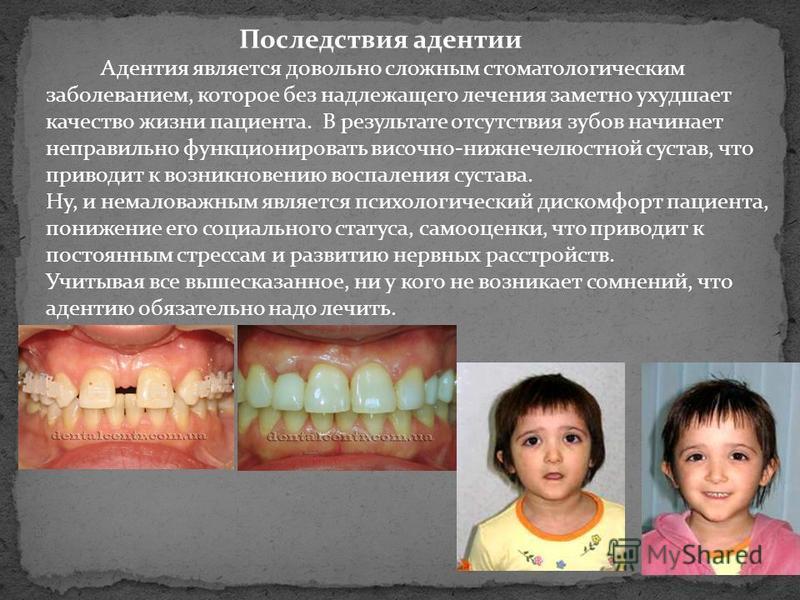 Последствия адентии Адентия является довольно сложным стоматологическим заболеванием, которое без надлежащего лечения заметно ухудшает качество жизни пациента. В результате отсутствия зубов начинает неправильно функционировать височно-нижнечелюстной