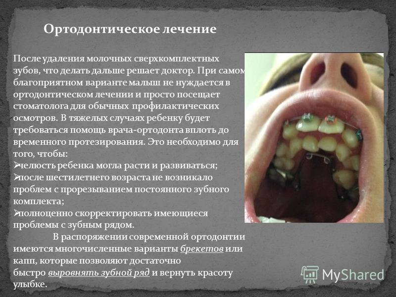 Ортодонтическое лечение После удаления молочных сверхкомплектных зубов, что делать дальше решает доктор. При самом благоприятном варианте малыш не нуждается в ортодонтическом лечении и просто посещает стоматолога для обычных профилактических осмотров