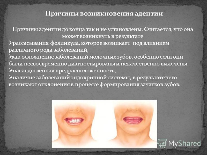 Причины возникновения адентии Причины адентии до конца так и не установлены. Считается, что она может возникнуть в результате рассасывания фолликула, которое возникает под влиянием различного рода заболеваний, как осложнение заболеваний молочных зубо