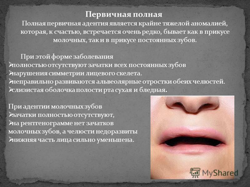 Первичная полная Полная первичная адентия является крайне тяжелой аномалией, которая, к счастью, встречается очень редко, бывает как в прикусе молочных, так и в прикусе постоянных зубов. При этой форме заболевания полностью отсутствуют зачатки всех п