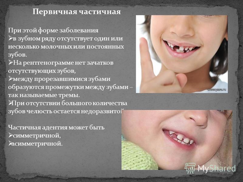 Первичная частичная При этой форме заболевания в зубном ряду отсутствует один или несколько молочных или постоянных зубов. На рентгенограмме нет зачатков отсутствующих зубов, между прорезавшимися зубами образуются промежутки между зубами – так называ