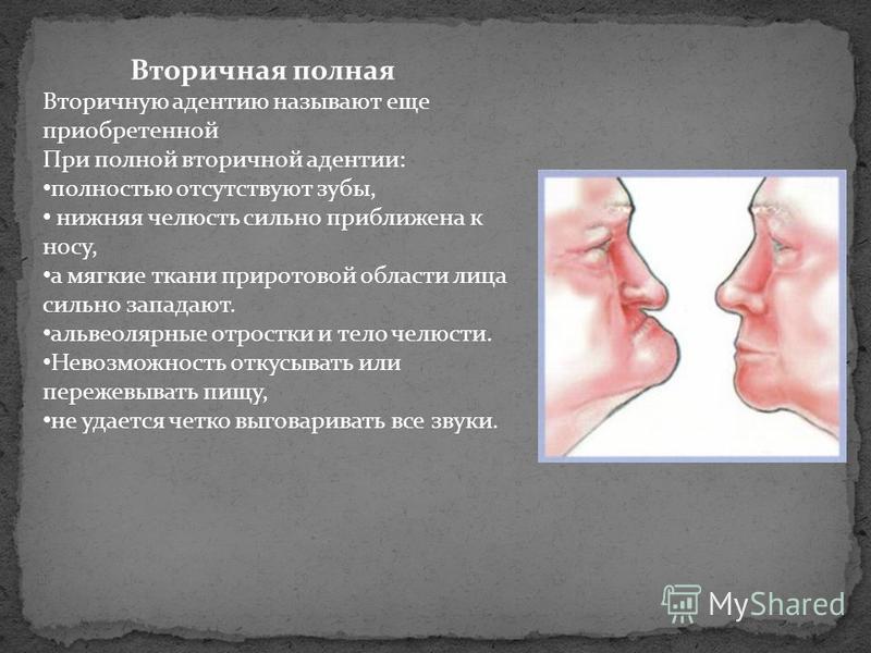 Вторичная полная Вторичную адентию называют еще приобретенной При полной вторичной адентии: полностью отсутствуют зубы, нижняя челюсть сильно приближена к носу, а мягкие ткани при ротовой области лица сильно западают. альвеолярные отростки и тело чел