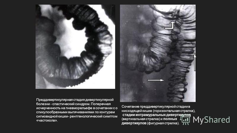 Преддивертикулярная стадия дивертикулярной болезни - спастический синдром. Поперечная исчерченность на пневмо рельефе в сочетании с о спикулообразными выпячиваниями по контурам сигмовидной кишки- рентгенологический симптом «частокола». Сочетание пред