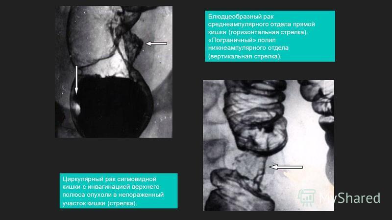 Блюдцеобразный рак среднеампулярного отдела прямой кишки (горизонтальная стрелка). «Пограничный» полип нижнеампулярного отдела (вертикальная стрелка). Циркулярный рак сигмовидной кишки с инвагинацией верхнего полюса опухоли в непораженный участок киш