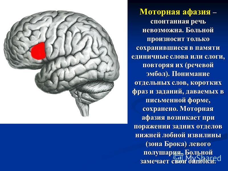 Моторная афазия – спонтанная речь невозможна. Больной произносит только сохранившиеся в памяти единичные слова или слоги, повторяя их (речевой эмбол). Понимание отдельных слов, коротких фраз и заданий, даваемых в письменной форме, сохранено. Моторная