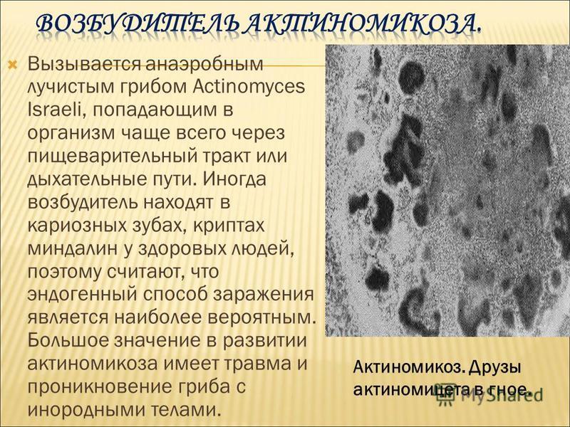Вызывается анаэробным лучистым грибом Actinomyces Israeli, попадающим в организм чаще всего через пищеварительный тракт или дыхательные пути. Иногда возбудитель находят в кариозных зубах, криптах миндалин у здоровых людей, поэтому считают, что эндоге