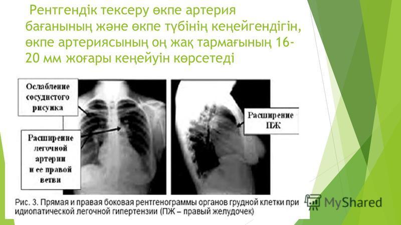 Рентгендік тексеру ө купе артерия ба ғ анны ң ж ә не ө купе т ү біні ң ке ң ейгендігін, ө купе артерия ссыны ң о ң жа қ терма ғ сыны ң 16- 20 мм же ғ ары ке ң ейуін к ө рсетеді
