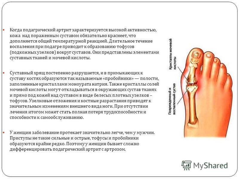 Когда подагрический артрит характеризуется высокой активностью, кожа над пораженным суставом обязательно краснеет, что дополняется общей температурной реакцией. Длительное течение воспаления при подагре приводит к образованию тофусов ( подкожных узел