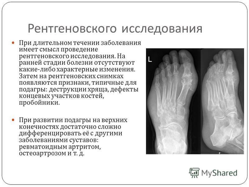 Рентгеновского исследования При длительном течении заболевания имеет смысл проведение рентгеновского исследования. На ранней стадии болезни отсутствуют какие - либо характерные изменения. Затем на рентгеновских снимках появляются признаки, типичные д