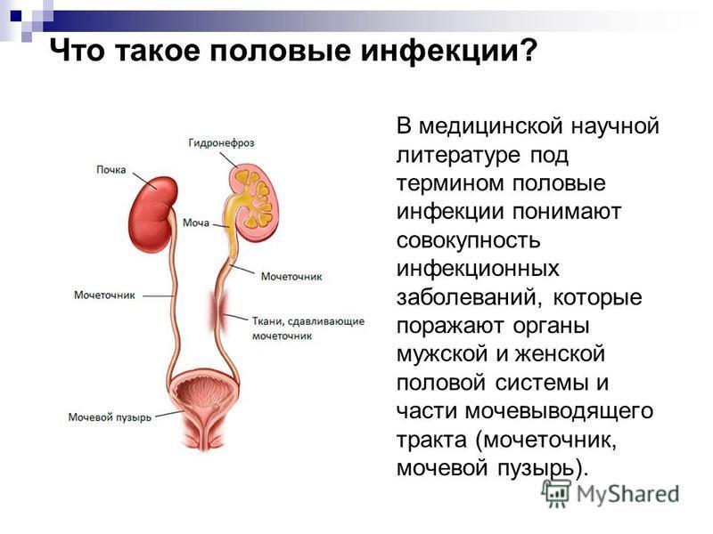 Что такое половые инфекции? В медицинской научной литературе под термином половые инфекции понимают совокупность инфекционных заболеваний, которые поражают органы мужской и женской половой системы и части мочевыводящего тракта (мочеточник, мочевой пу