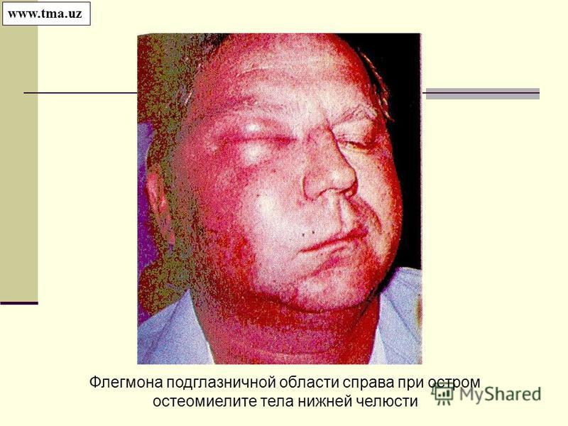 Флегмона подглазничной области справа при остром остеомиелите тела нижней челюсти www.tma.uz