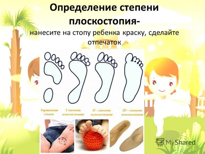 Определение степени плоскостопия- нанесите на стопу ребенка краску, сделайте отпечаток