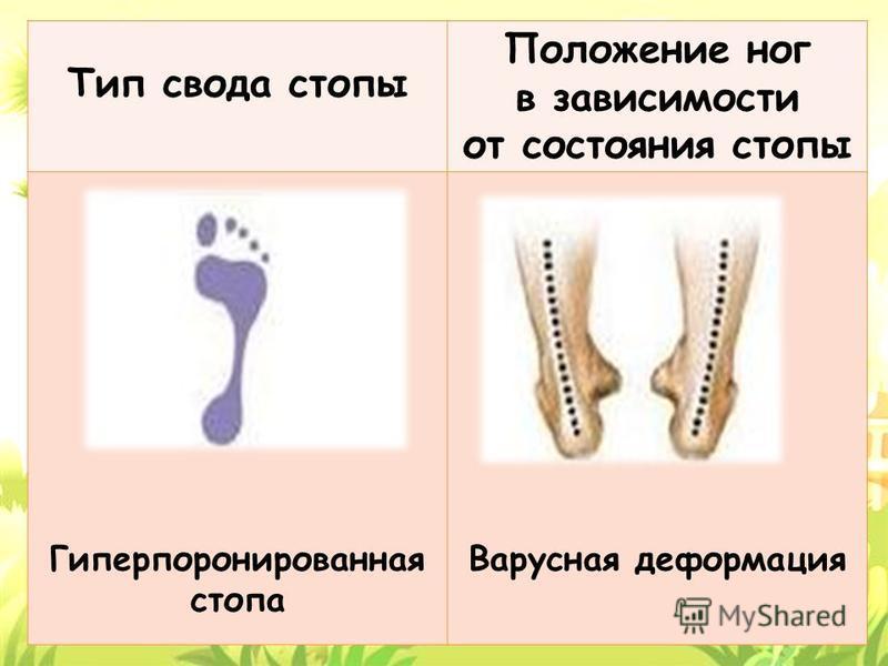 Тип свода стопы Положение ног в зависимости от состояния стопы Гиперпоронированная стопа Варусная деформация