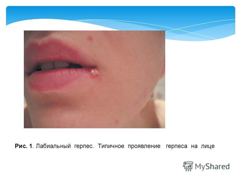 Рис. 1. Лабиальный герпес. Типичное проявление герпеса на лице