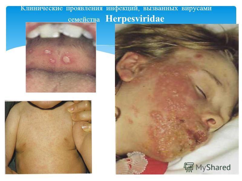 Клинические проявления инфекций, вызванных вирусами семейства Herpesviridae